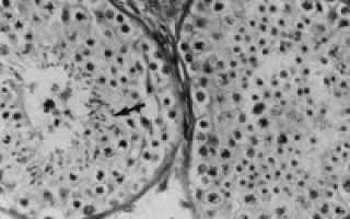 Астенотератозооспермия — причины заболевания