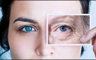 Удаление морщин вокруг глаз