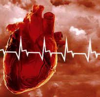 Сердечная недостаточность — Лечение в Швейцарии