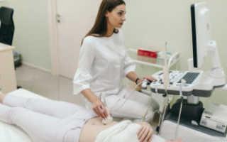 Аспирационная биопсия эндометрия