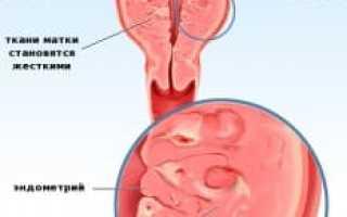Диффузное изменение миометрия: признаки, симптомы, лечение