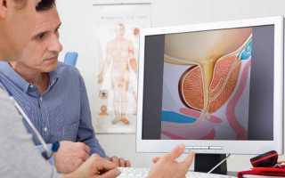 Простатит: симптомы, лечение, профилактика