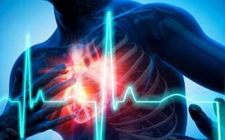 Причины вазоспастической стенокардии симптомы лечение и прогноз жизни