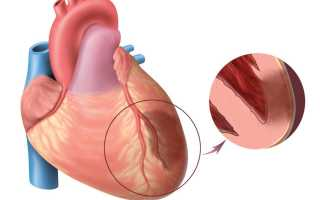 Признаки и терапия субэпикардиальной ишемии миокарда