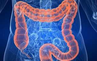 Пневматоз кишечника — симптомы и признаки