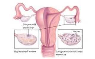 Лечение ретенционной кисты обеих яичников — симптомы патологии