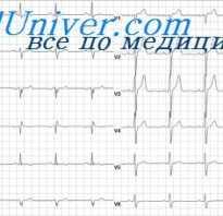 Инфаркт без зубца Q Интрамуральный инфаркт миокарда