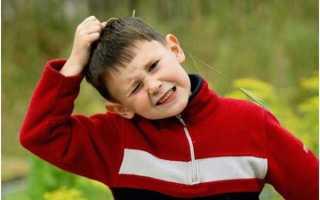 Как лечить перхоть у ребёнка