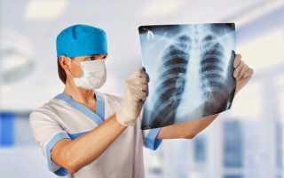 Детский туберкулез первые признаки и виды заболевания