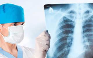 Первичное обследование, диагностика и постановка диагноза у пациентов с подозрением на рак легкого