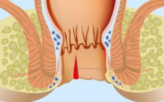 Консервативное лечение анальных трещин у беременных