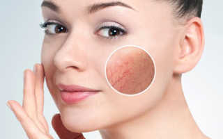 Купероз на носу телеангиэктазия] – только эффективные методы лечения