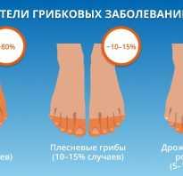 Грибок ногтей: почему появляется и как проявляется