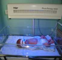 Желтушка у новорожденного причины Когда проходит желтушка у новорожденных