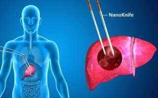 Гемангиома печени: виды новообразования и методики лечения