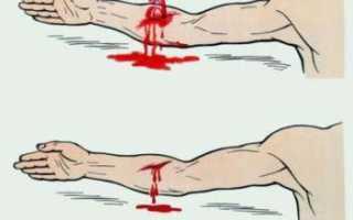 Чем опасно капиллярное кровотечение и как его остановить